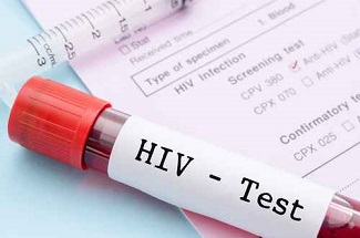 Increased Number of HIV-Positive MSM Being Tested Annually but Needs for Ancillary Services Going Unmet