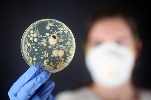 Tracing The Microbial Footprint