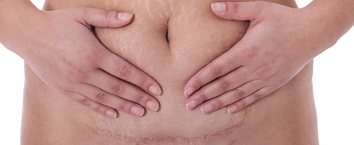 Post-Cesarean-Section Antibiotics May Prevent SSIs in Obese Women