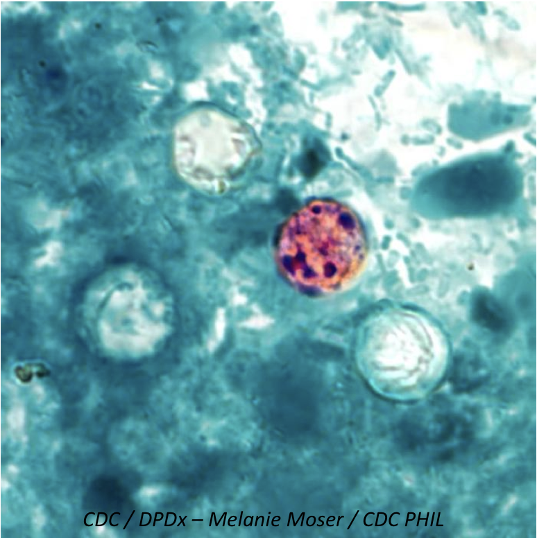 Multistate Outbreak of <i>Cyclospora</i> Connected to Pre-Packaged Vegetable Trays