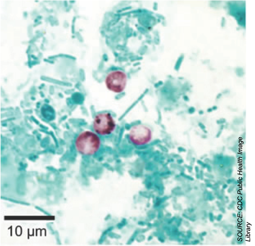 <em>Cryptosporidium</em>: A Potentially Fatal Cause of Diarrhea in a Heart Transplant Recipient