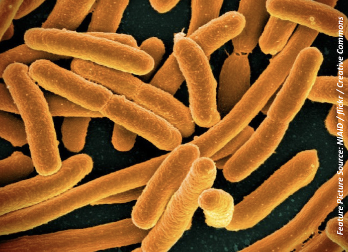 Tracing ESBL <i>E coli</i> in the UK: Human Hygiene Contributes More to Infection Than Food Chain