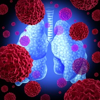 Lefamulin Meets All Primary Endpoints in LEAP 2 Phase 3 Trial for the Treatment of CABP