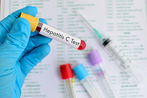 A Cost-Effective Method to Decrease HCV Infections in High-Risk Communities