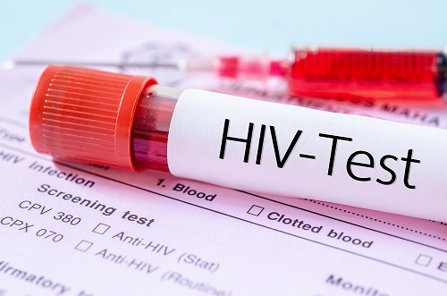 Don't Guess, Get The Test: Increased Testing Key to Stopping HIV Epidemic