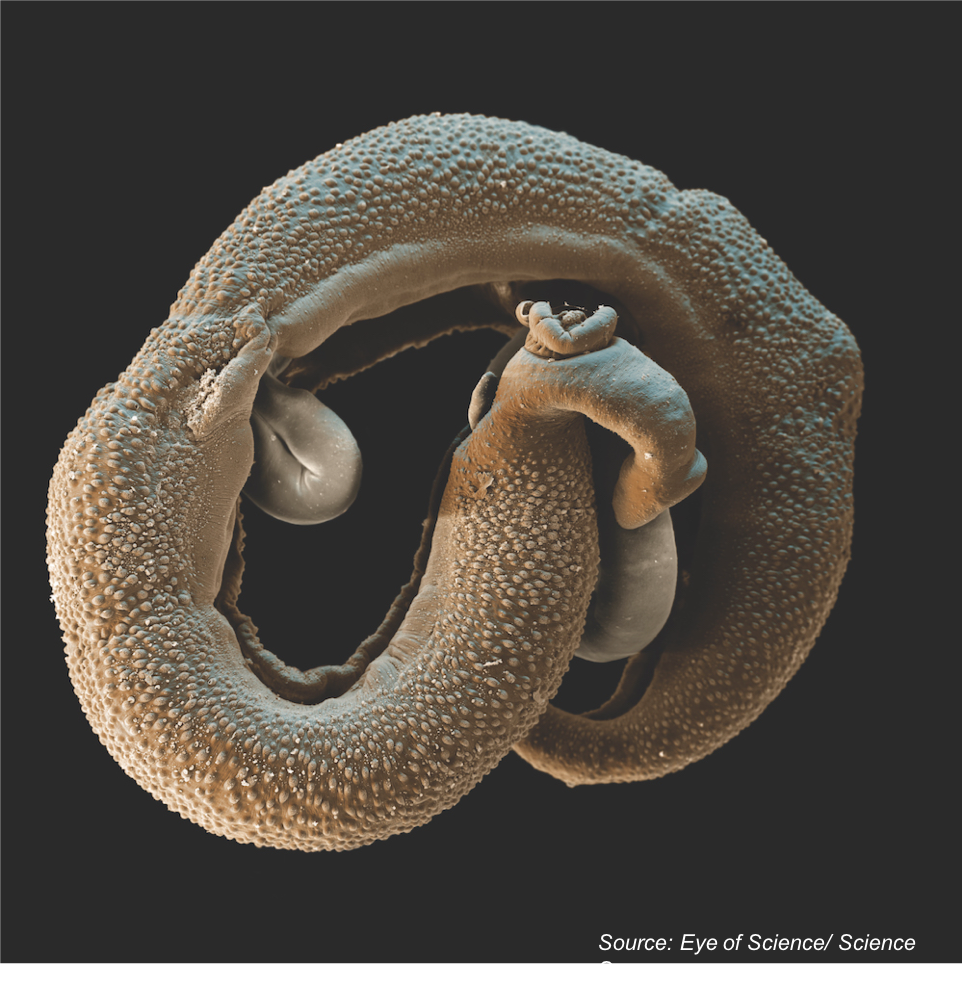 Is Investment in New Technologies for Diagnosing Schistosomiasis Justified in an Era of <em>Schistosoma</em> Elimination?