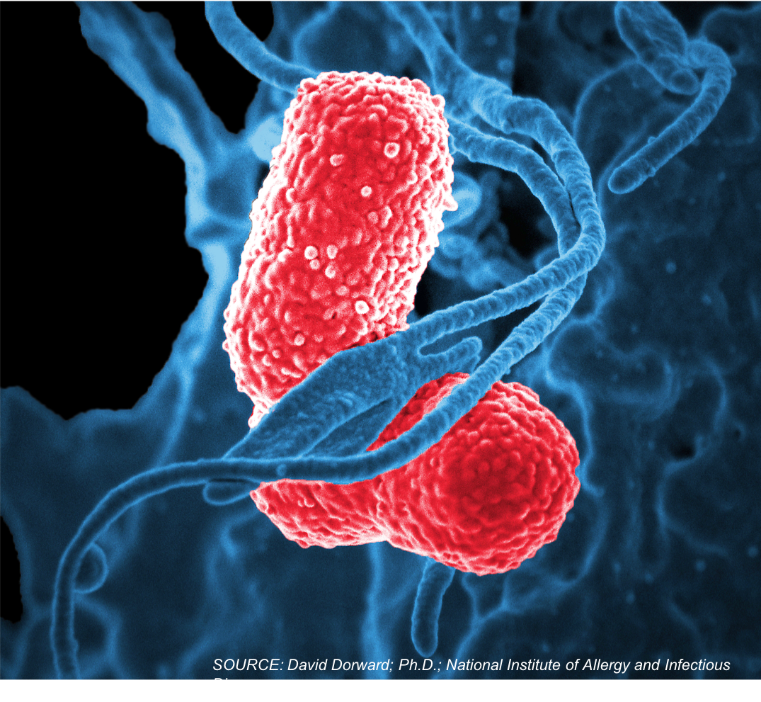 First 'Triple Threat' Strain of <em>Klebsiella pneumoniae</em> Found in the United States