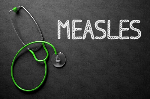 Measles Outbreaks Can Occur in Intense Exposure Settings Despite High Immunity Levels