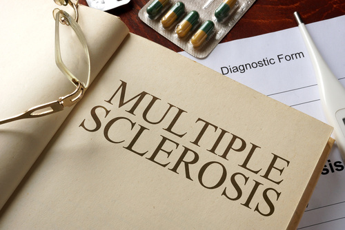 Influenza Triggers Immune Responses Resulting in Relapse in Patients with Multiple Sclerosis