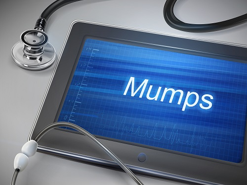 University Mumps Outbreak Prevails Despite High 2-Dose MMR Coverage
