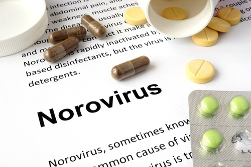 Norovirus Detection Strategies: Evaluating a New Environmental Swabbing Technique