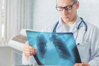 Pneumonia Linked With 43% of Unexpected Infectious Deaths in Study