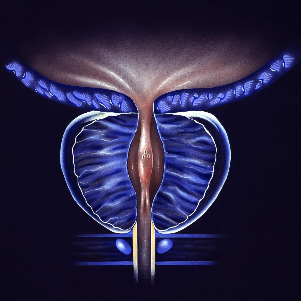 prostatitis monurol