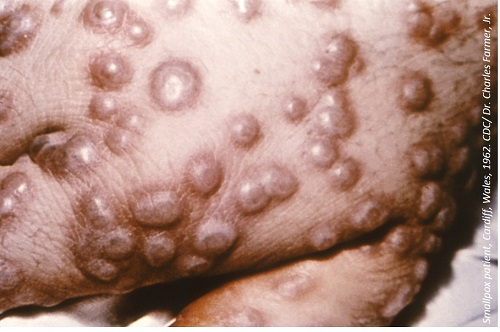 Oral Smallpox Treatment Gains FDA NDA Acceptance and Priority Review