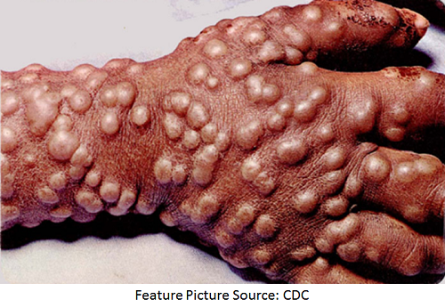 Smallpox Treatment Moves Closer to FDA Approval