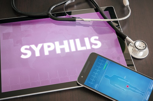 Doxycycline Looks to Be Acceptable Alternate Treatment for Syphilis in HIV-Positive Patients