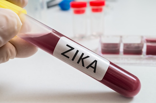 Texas Health Officials Recommend Additional Zika Testing