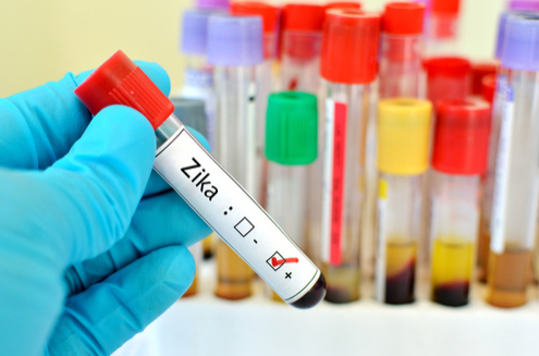Hundreds of Blood Samples Retested for Zika Due to False Negative Results