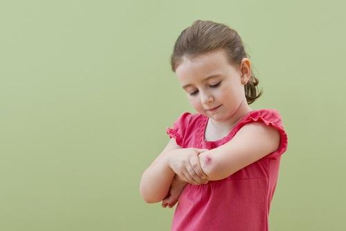 Daptomycin Effective Against MRSA Skin Infections in Children